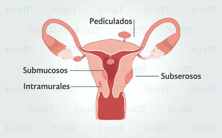 Ilustración de un útero con clasificación de miomatosis uterina