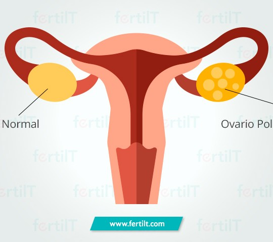 https://www.fertilt.com/wp-content/uploads/2017/10/sindrome-de-ovario-poliquistico-540x479.jpg
