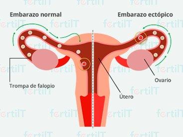 https://www.fertilt.com/wp-content/uploads/2017/11/embarazo-ectopico-destacada.jpg